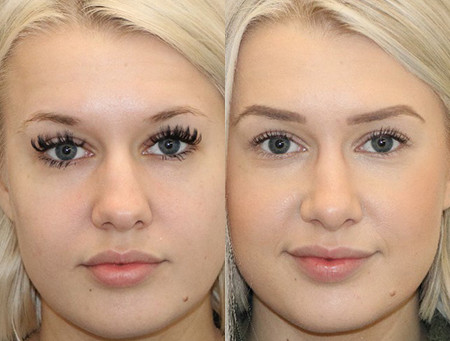 Seattle NoseJob || Rhinoplasty Before & After || 6 Months - F28
