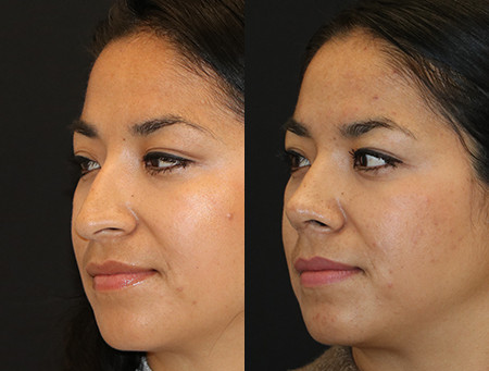 Rhinoplasty Before & After  F27