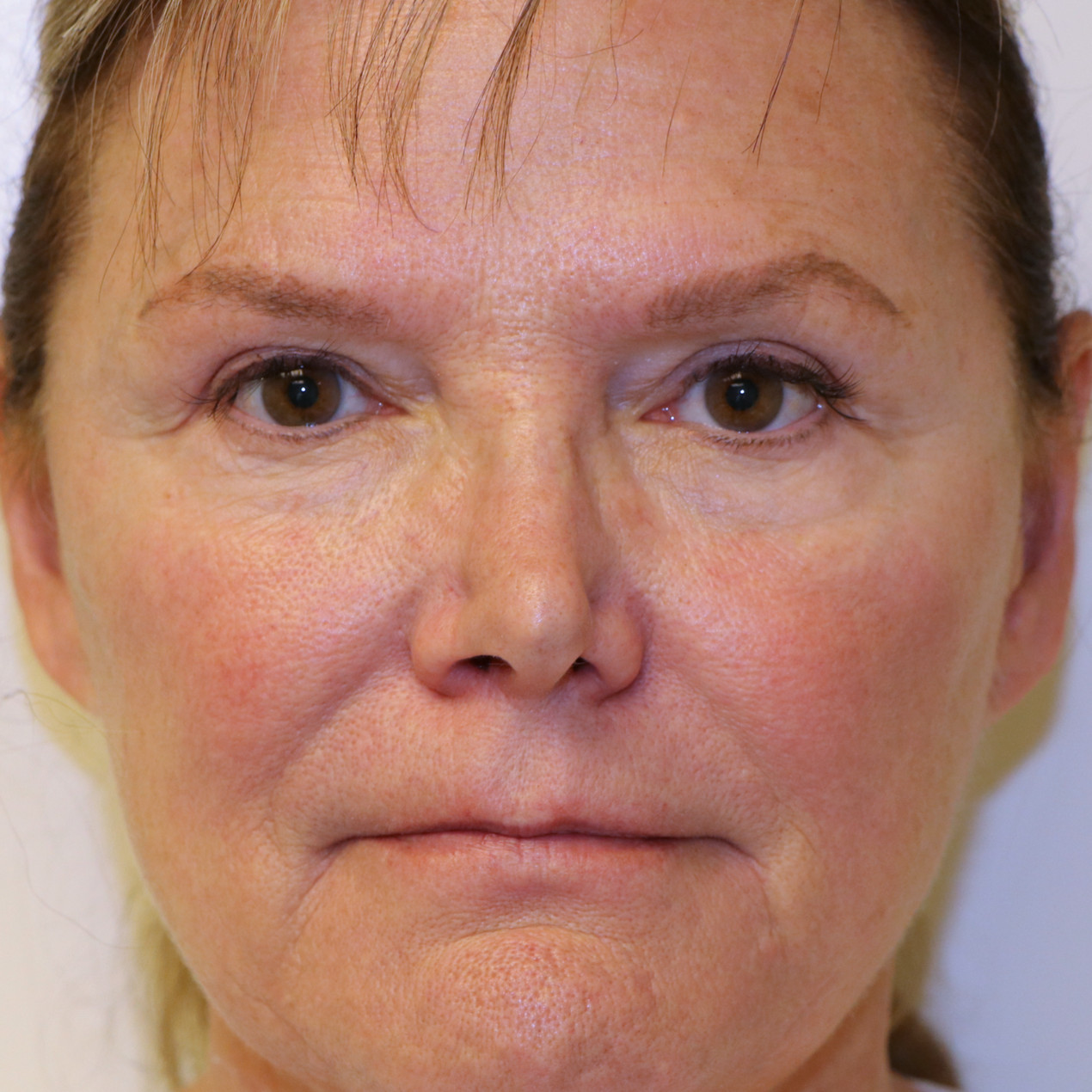 Before Nasal valve collapse surgery