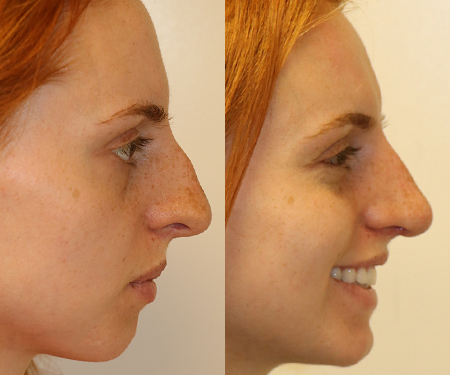 Seattle Rhinoplasty Before & After F24