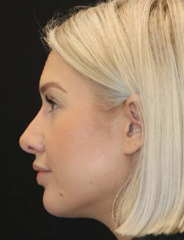 Seattle Rhinoplasty 6M after surgery
