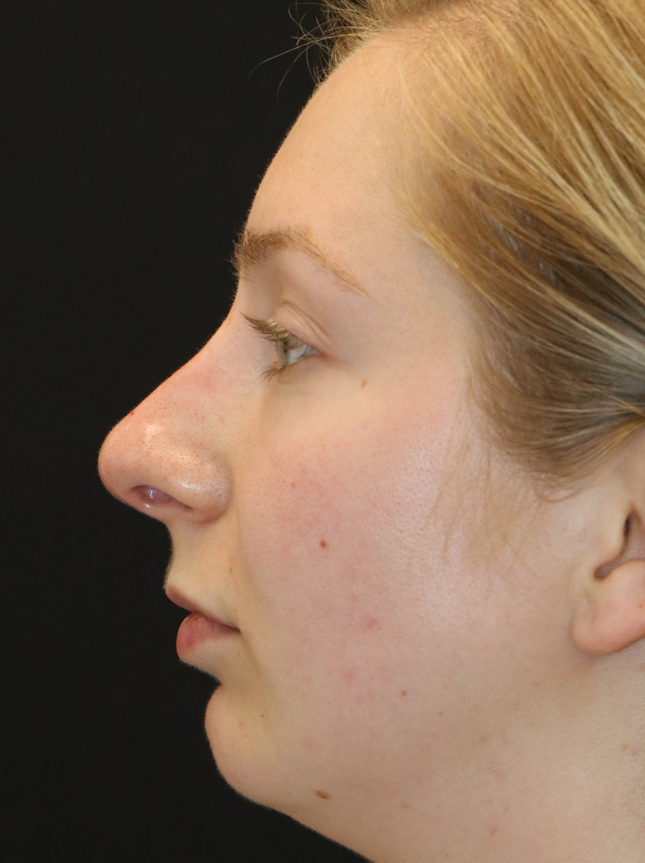 SEATTLE, WA - Rhinoplasty Expert this patient had a filler nose job. Photo taken just after injections