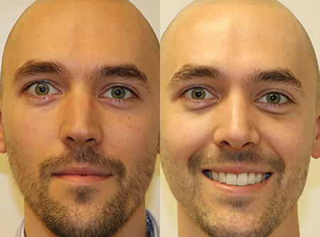 Seattle Rhinoplasty Before & After - M02
