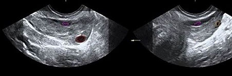 Ridotta riserva ovarica.JPG