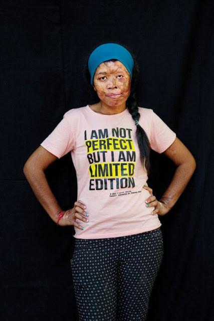 Sokneang, victime cambodgienne. Ann-Christine Woehrl