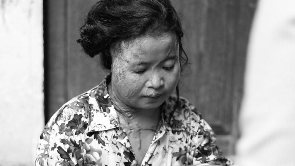 Srey Mom. victime d'une attaque à l'acide. Photographie HRW
