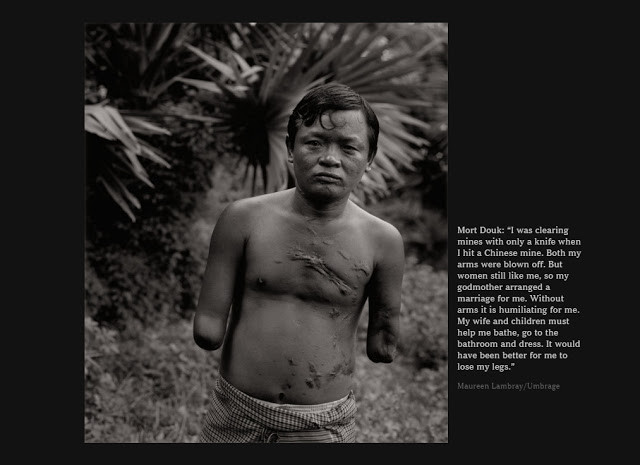 Victime d'une mine. Photo par  Maureen Lambray