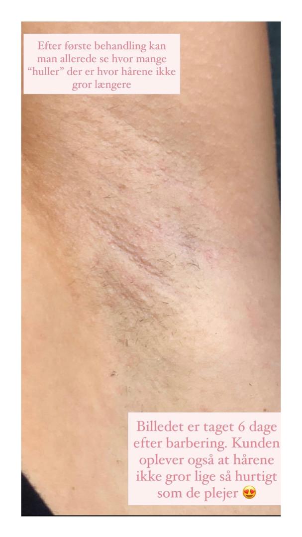 Resultat af SHR laser