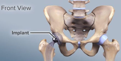 uncemented-replacement-hip-joint_edited.
