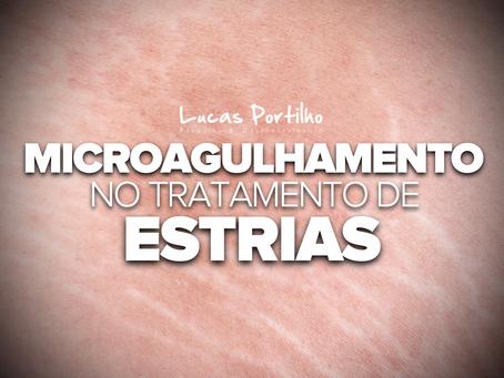 Microagulhamento no Tratamento de Estrias