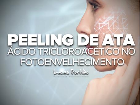 Peeling de Ácido Tricloroacético no Tratamento do Fotoenvelhecimento