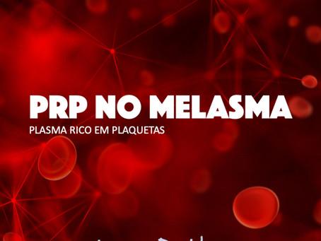 Plasma Rico em Plaqueta no Melasma
