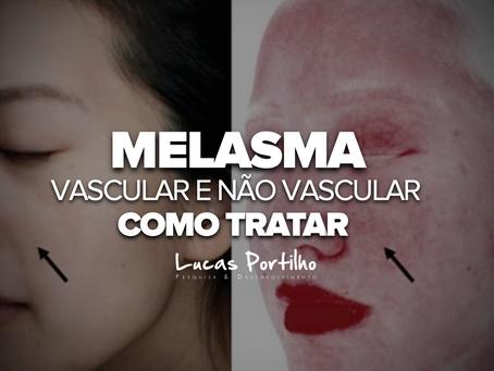 Melasma vascular e não vascular: Como Tratar?