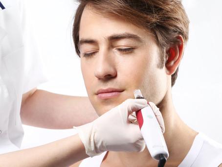 Microagulamento com Minoxidil não Precisa ser Dolorido