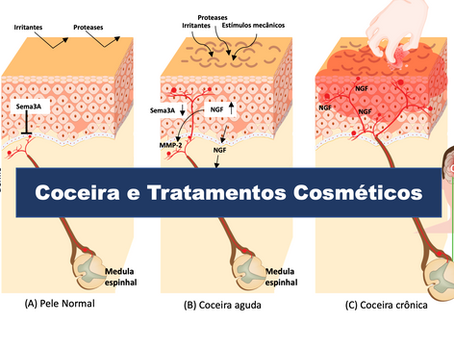 Como Tratar a Coceira com Cosméticos e Melhorar a Condição da Pele