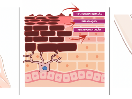 Hiperpigmentação Axilar e das Virilhas