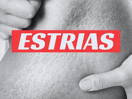 Tratamentos para Estrias
