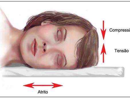 Sleep wrinkles: Rugas que se formam enquanto dormimos