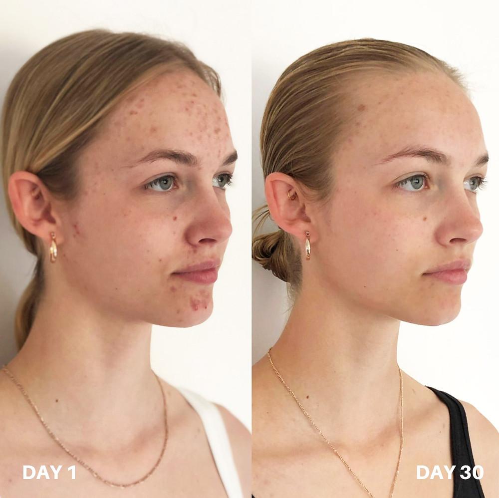 kako ukloniti akne