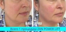 Zan Factor Mezo До/После
