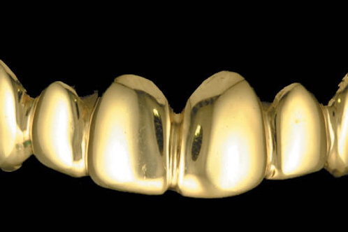 Piece Gold Grill SALE!!!
