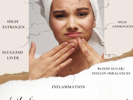 Do I Have Hormonal Acne?