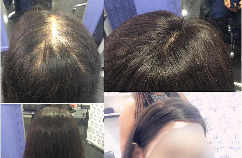 Hair Integration System