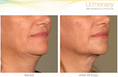 Ultherapy Chin Results.png