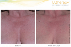Ultherapy Chest Results.png