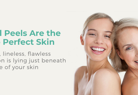 Chemical Peels Are the Secret to Perfect Skin