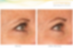 Ulthearapy Brow Results.png