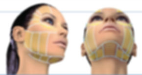 Ultherapy-full-face-and-neck-.jpg