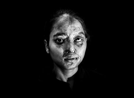Acid Attacks / Retratos de sobrevivientes