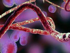 Ebola - Kampf gegen das Virus (N24)