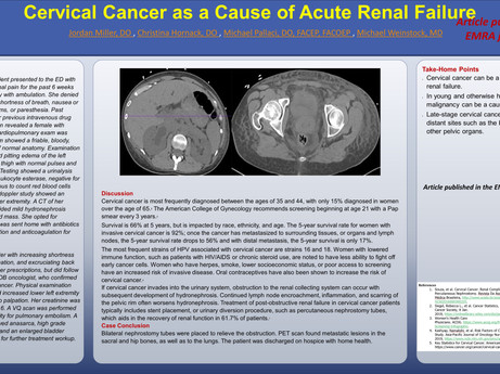 Research - Cervical cancer as cause of A