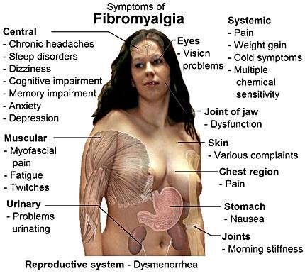 Balance in Motion, Santa Barbara Pain Therapy - Fibromyalgia Symptoms
