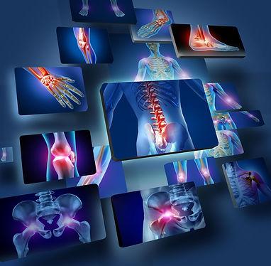 Balance in Motion, Santa Barbara Pain Therapy - Arthritis