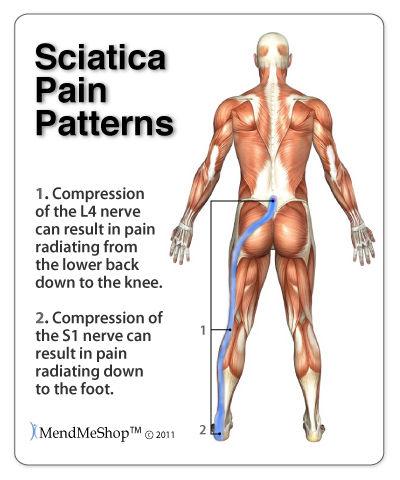 Balance in Motion, Santa Barbara Pain Therapy - Sciatica Pain