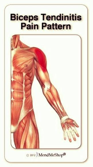 Balance in Motion, Santa Barbara Pain Therapy - Tendonitis