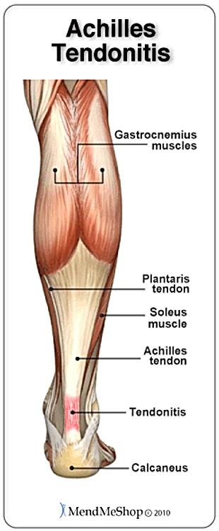 Balance in Motion, Santa Barbara Pain Therapy - Achilles Tendonitis