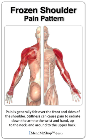 Balance in Motion, Santa Barbara Pain Therapy - Frozen Shoulder