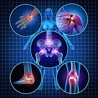 Balance in Motion, Santa Barbara Pain Therapy - bursitis