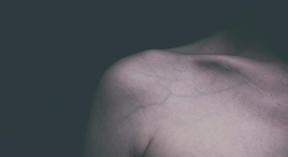 E no escuro, uma pele #3