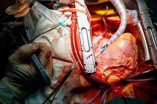Coronary artery bypass surgery.jpg