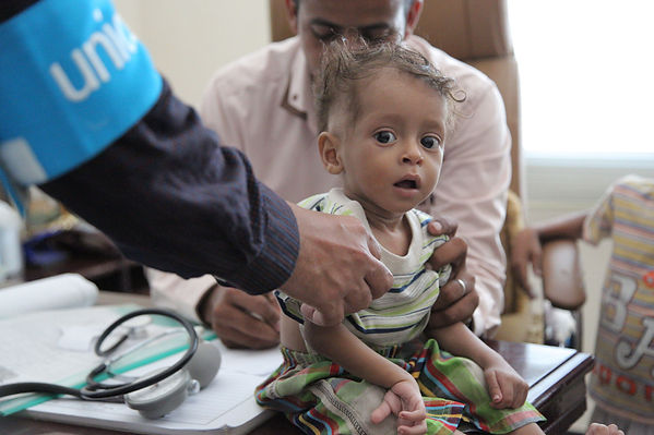 yemen-child-malnutrition.jpg