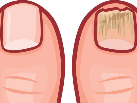 Fungal Nails - Causes and Treatments