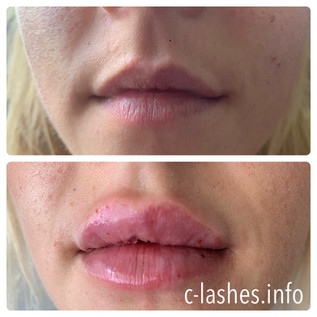 Lippen Volumen Nautural Lips