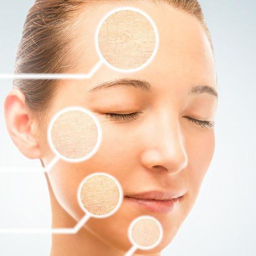 skin-types-dry-skin.jpg