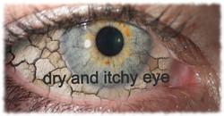 dry-eye-1-1_edited