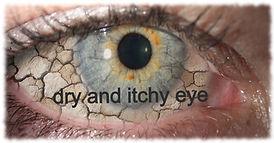 dry-eye-1-1_edited.jpg